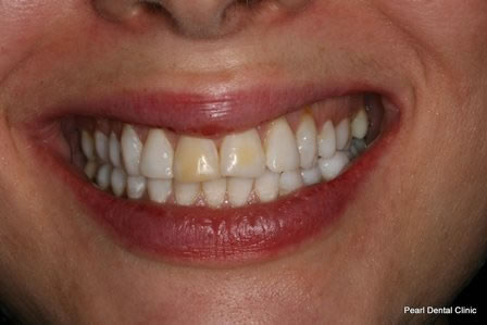 Dicsoloured Front Tooth Before After - Front discoloured tooth