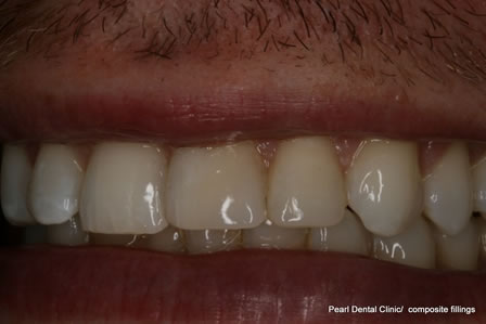 Composite Bonding Before After - Front teeth composite bonding