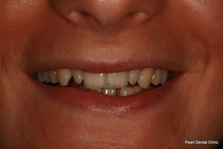 Dicsoloured/ Gap Teeth Before After- Upper discoloured teeth