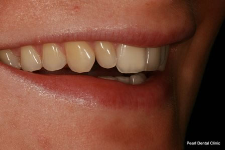 Dicsoloured/ Gap Teeth Before After- Right upper discoloured teeth