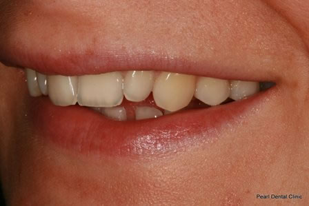 Dicsoloured/ Gap Teeth Before After- Left upper discoloured teeth