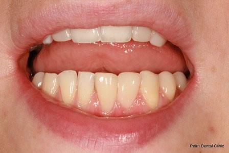 Dicsoloured/ Gap Teeth Before After- Bottom composite veneers teeth