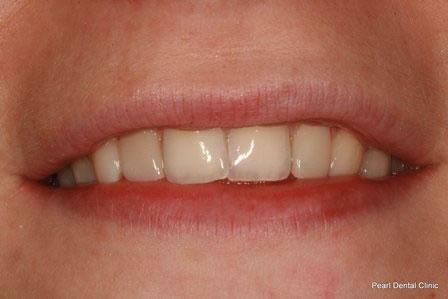 Dicsoloured/ Gap Teeth Before After- Front composite veneers teeth