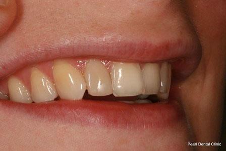 Dicsoloured/ Gap Teeth Before After- Right upper composite veneers teeth