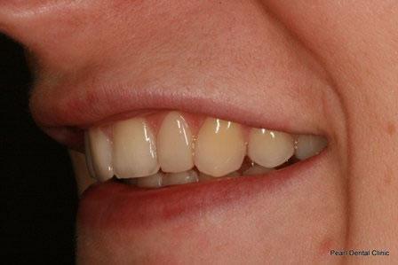 Dicsoloured/ Gap Teeth Before After- Left upper composite veneers teeth