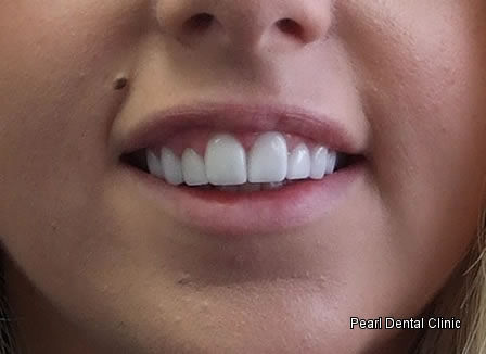 Laser Surgery Emax Veneer Before After - Front upper teeth
