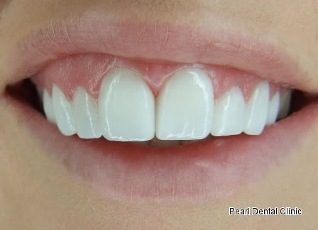 Laser Surgery Emax Veneer Before After - Close front upper teeth