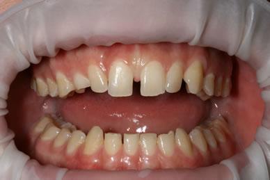 Teeth Gaps Before After - Full arch teeth gap