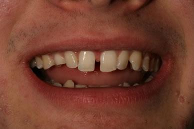 Teeth Gaps Before After - Upper teeth gap