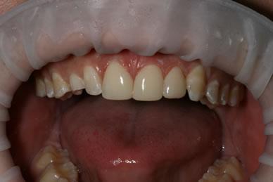 Teeth Gaps Before After - Top teeth three composite veneer
