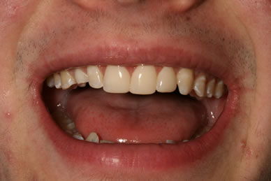 Teeth Gaps Before After - Upper teeth composite veneer