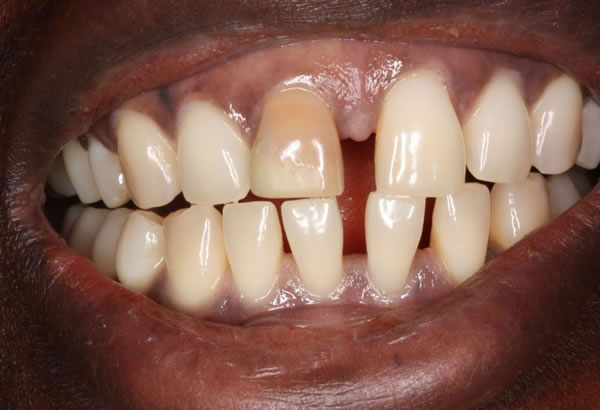 Discoloured Incisor/ Gap Before After - Upper/lower teeth gap