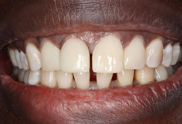 Discoloured Incisor/ Gap Before After - Upper/lower teeth composite veneers