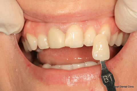White Fillings Before After - Upper teeth