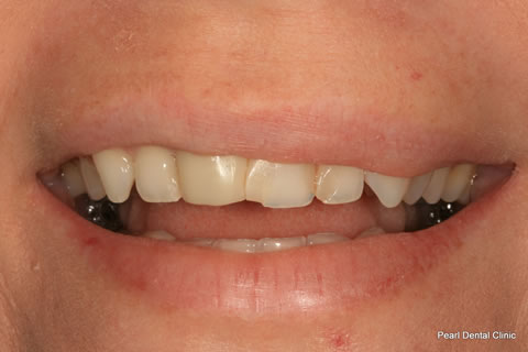 White Fillings Before After - Front upper teeth
