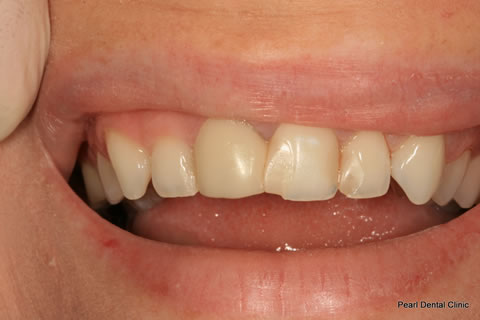 White Fillings Before After - Upper front teeth