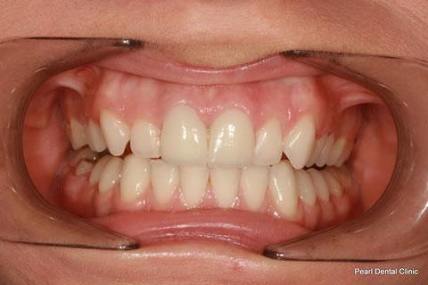 White Fillings Before After - Full arch upper teeth crown/ veneer