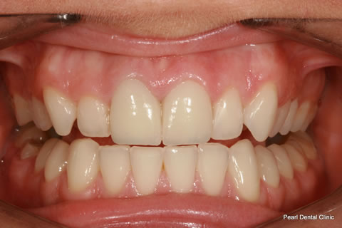 White Fillings Before After - Full arch upper teeth crown/ veneer