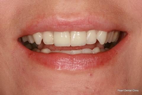 White Fillings Before After - Front upper teeth crown/ veneer