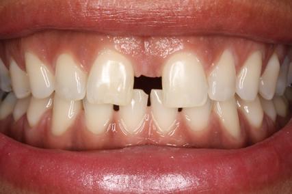 Front Teeth Spacing Before After - Upper teeth spacing