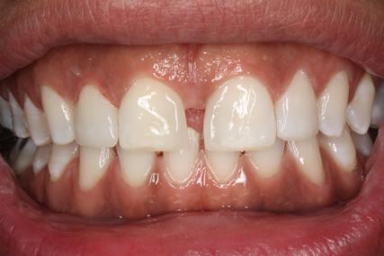 Front Teeth Spacing Before After - Upper teeth composite veneer