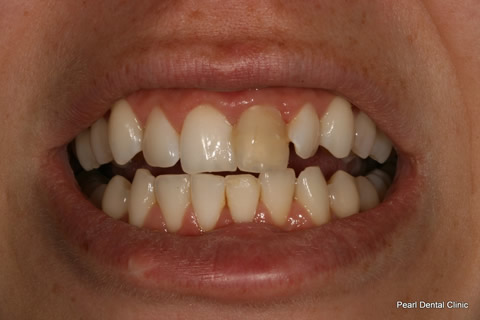 Discoloured Tooth Before After - Upper front tooth