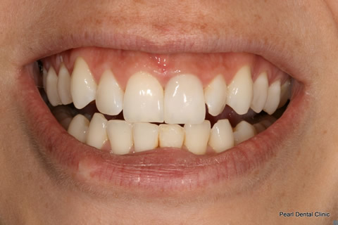 Discoloured Tooth Before After - Upper front tooth ceramic crown