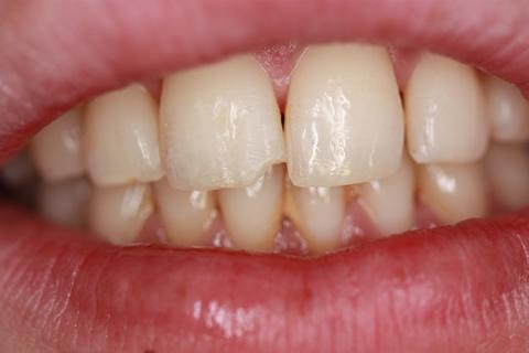 Broken Upper Tooth Before After - Front tooth broken