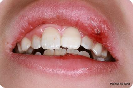 Dental Trauma Teeth Before After