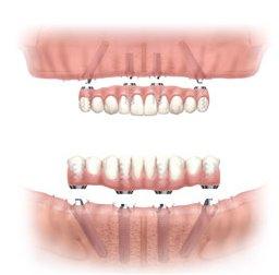 Missing or failing teeth