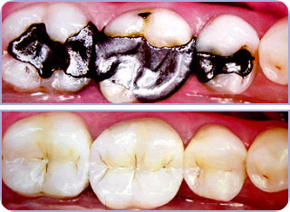 Mercury Free Dentistry Before After