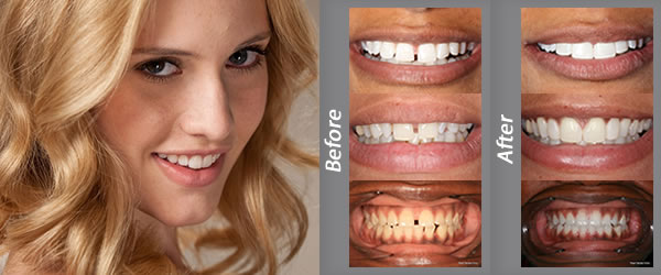 Composite Bonding by UK's Leading Dentists