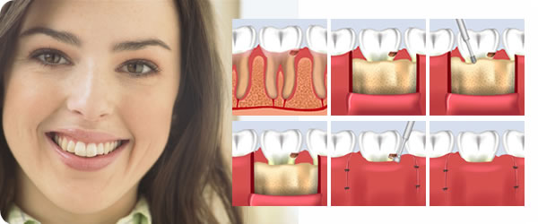 Crown Lengthening Amp Tooth Crown Lengthening Surgery In