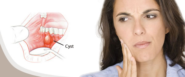 Dental Cysts management by dentist in Kingston, London. Available ...