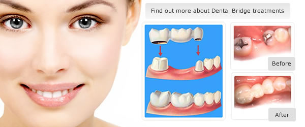 Dental dental bridges from £395