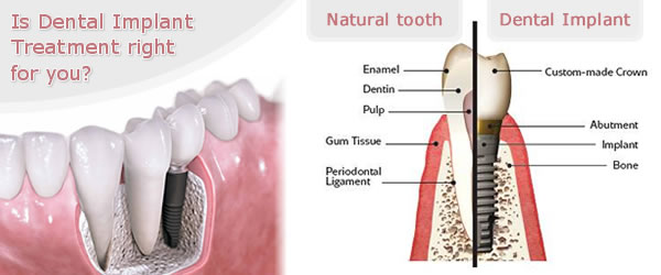 Find out more about dental implants and Same day Teeth