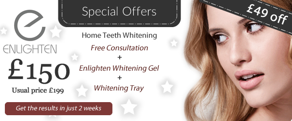 Home Teeth Whitening Special Offer