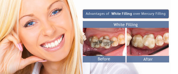 White fillings from £75