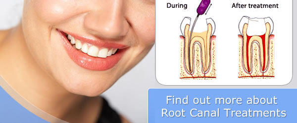 Root Canal Treatment (RCT) from £200