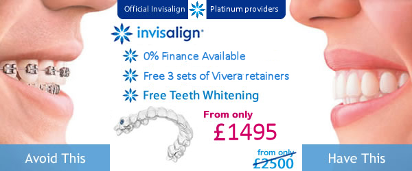 Special Offer on Invisalign from only £1495