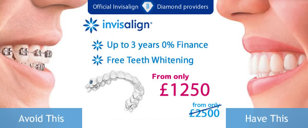 Invisalign Full Special Offer