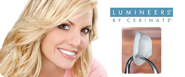 Dental Lumineers