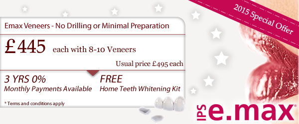 e.max dental veneers