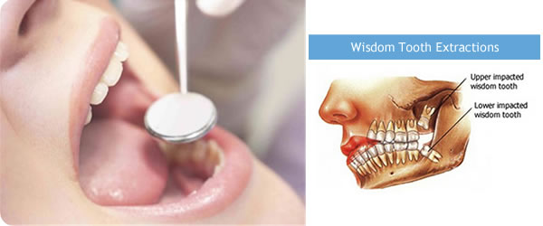 wisdom alcohol after teeth removed