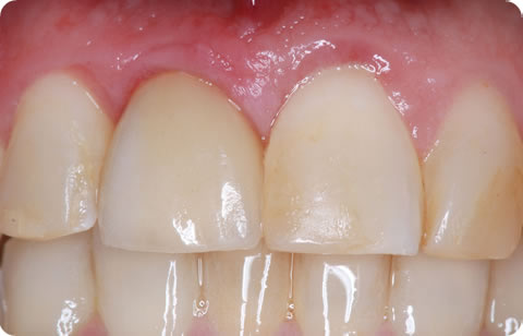 Bone Grafting Before After