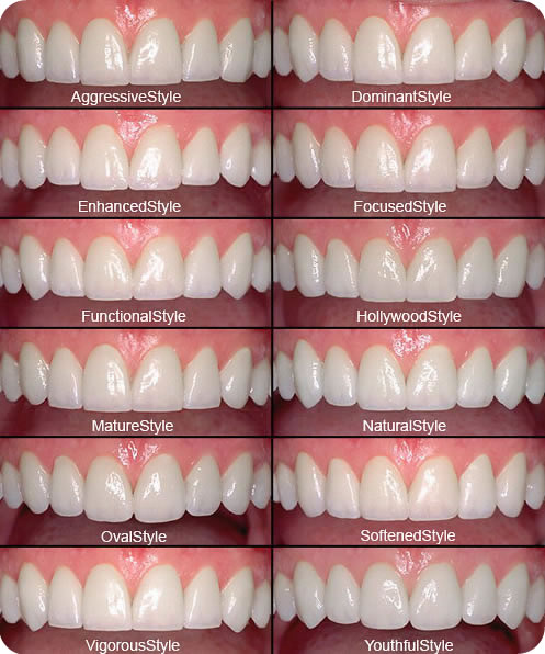 Emax Lumineers Before After