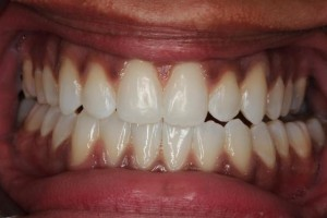 invisalign after front view