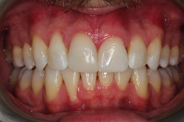invisalign and composite bonding after.jpg