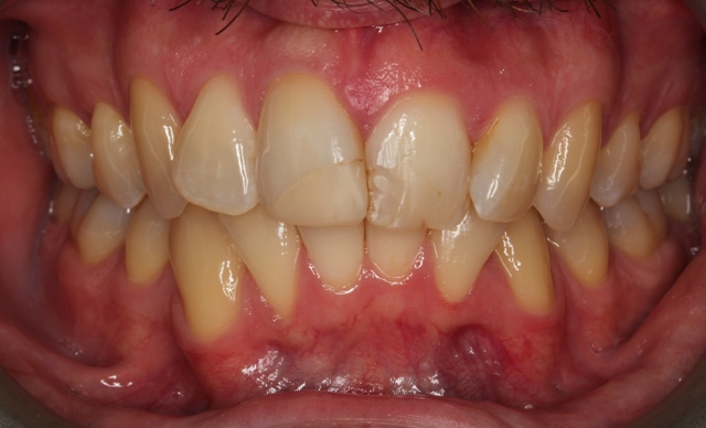 invisalign and composite bonding before.jpg