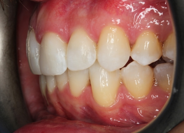 invisalign and composite bonding before3